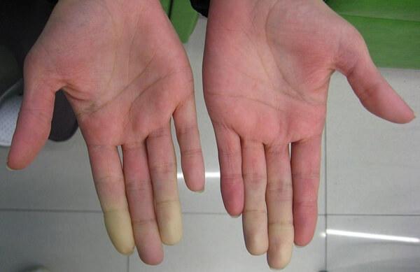 White Finger Syndrome, HAVS